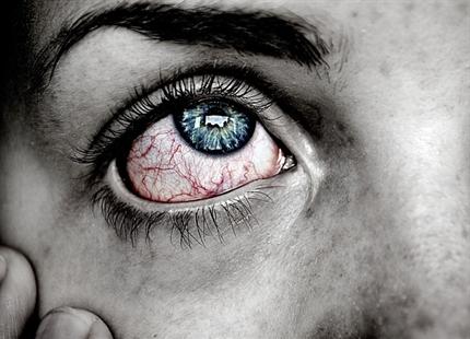 Kontorpersonale klager oftest over øjenproblemer på kontoret