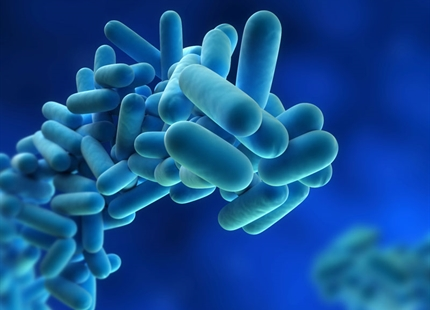 Legionnaires Disease and Infection Control