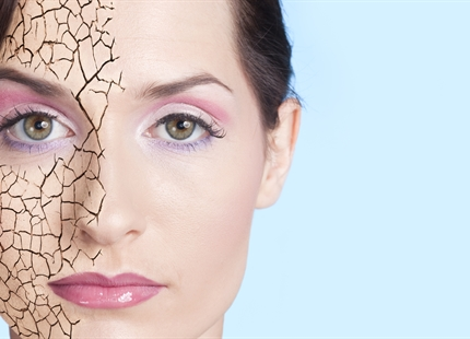 What Can Low Humidity Do to Your Skin?