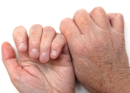 dry hands that show wrinkles