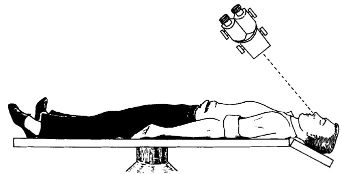 Drawn image a man laying on a table being examined a by medical instrument