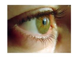 Zu trockene Luft kann Beschwerden mit trockenen Augen verstärken