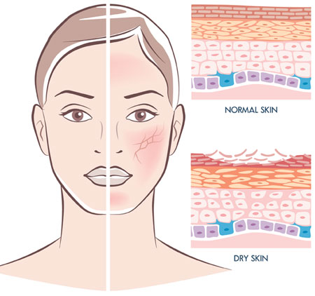 Diagram of humidity and the effects on skin